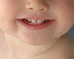 Children teeth