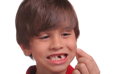 Dental injuries and accidents